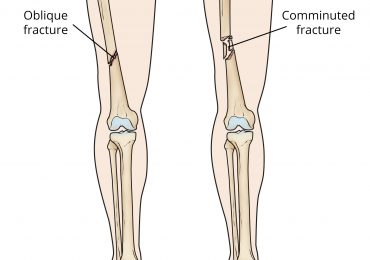 Femur Bone: All you will need to know